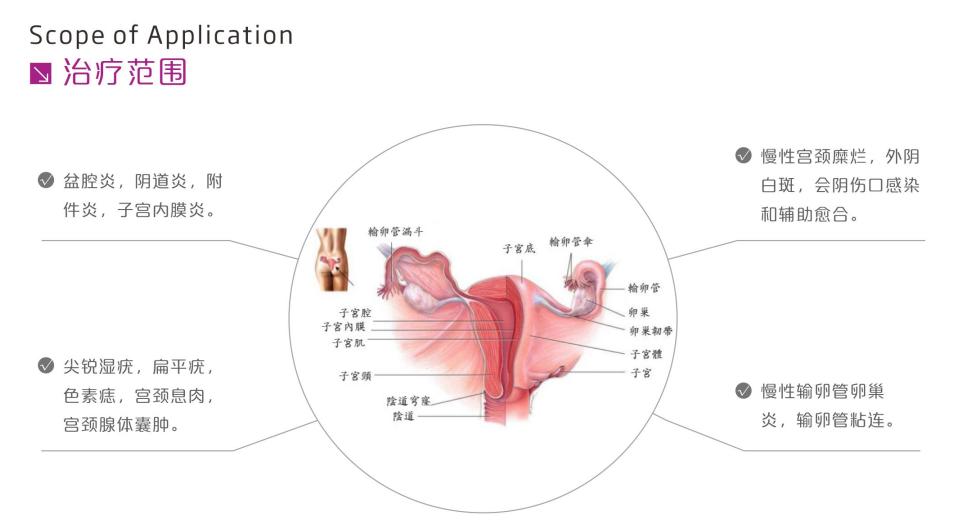 治疗范围图.png